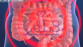 ביטויי GI בCdLS