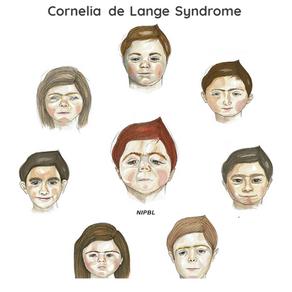?מהי תסמונת קורנליה דה לנגה