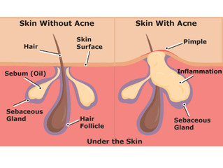 What causes Acne!