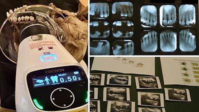 Dental Images.png