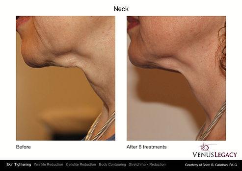 Venus Neck 2.jpg