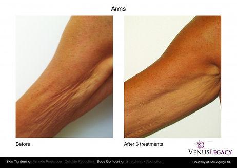 Venus Arms.jpg