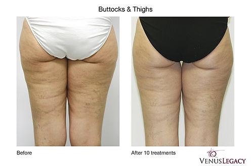 Venus Butt&Thighs.jpg