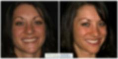 Natural Dental Veneers