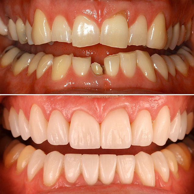 Full Mouth Reconstruction with Porcelain Veneers, Crowns and Bridges