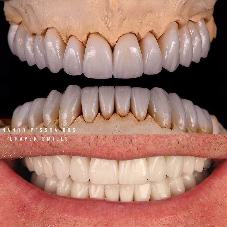 full mouth reconstruction TMJ