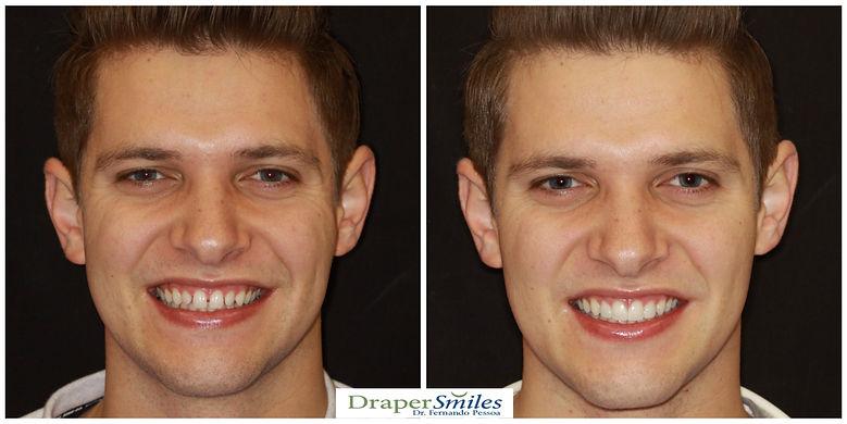 Cosmetic Dental Bonding by Artistic Dentist and Smile Designer Fernando Pessoa DDS,