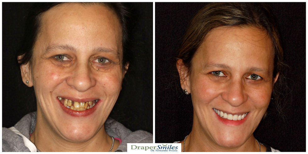 Dental Implant Reconstruction in Utah by Dr. Fernando Pesso, Draper Smiles (all-on-four)
