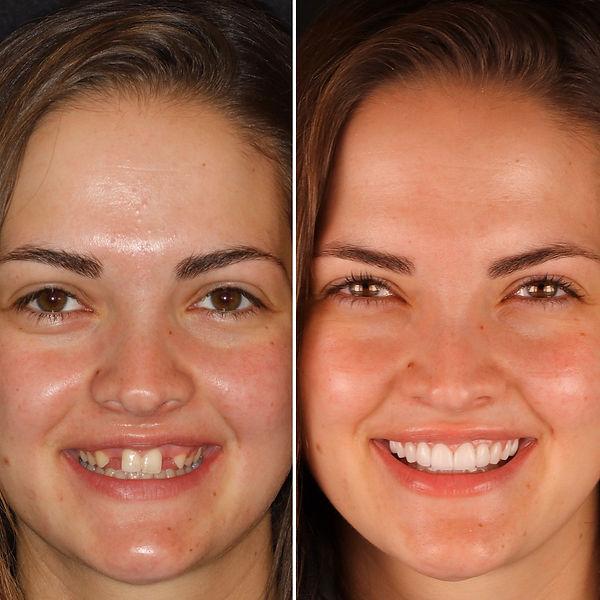 Cosmetic Porcelain Veneers and Dental Implants