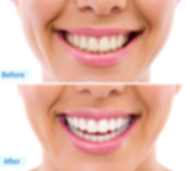 ZOOM! Whitening Draper Smiles before and after