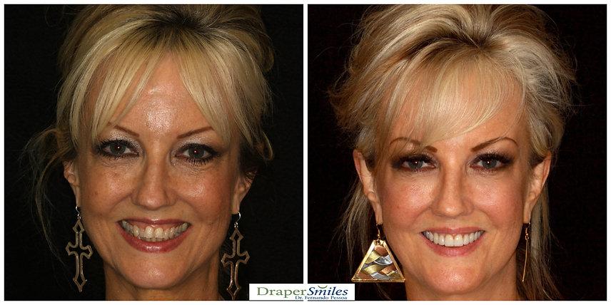 Natural Minimal thickness Porcelain Veneers after Orthodontics by Fernando Pessoa DDS at Draper Smiles in Utah