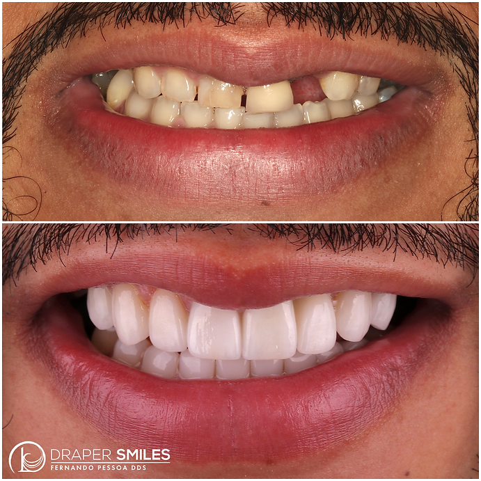 Cosmetic Full Mouth Reconstruction