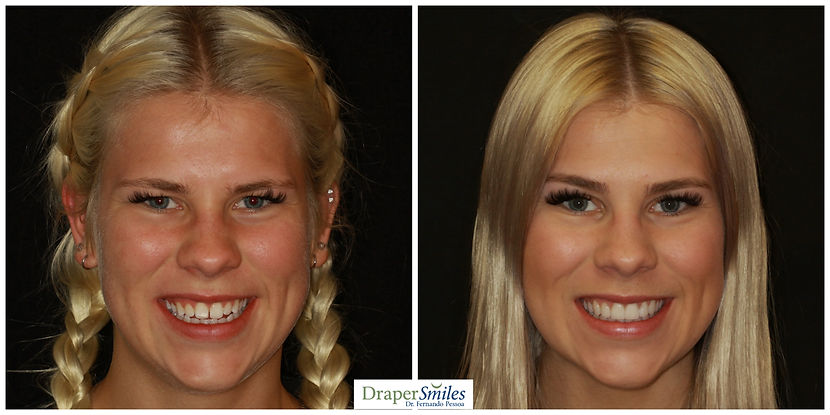 natural no-prep porcelain veneers by Dr. Fernando Pessoa at Draper Smiles in Utah