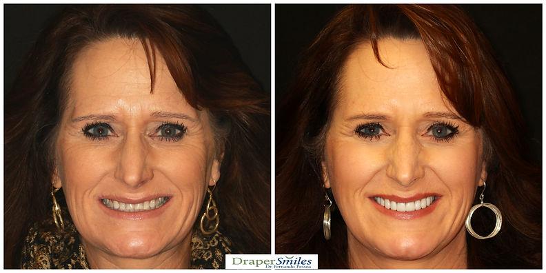 Conservative Porcelain Dental Crowns by Cosmetic Dentist Fernando Pessoa in Utah