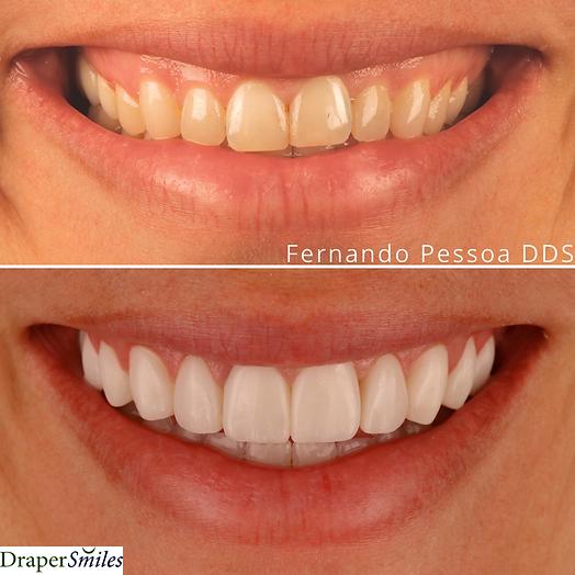Cosmetic Dental Bonding Composite Bonding