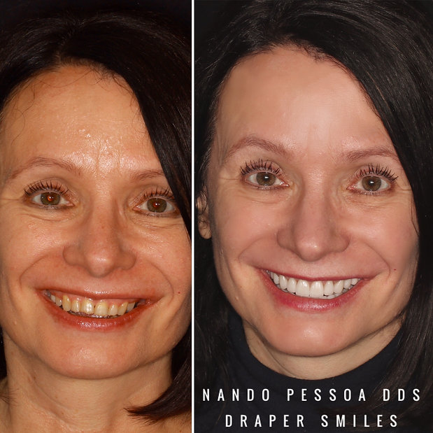 Dental Porcelain Cosmetic Dentistry Crowns