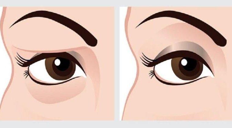 Drooping eyelid diagram