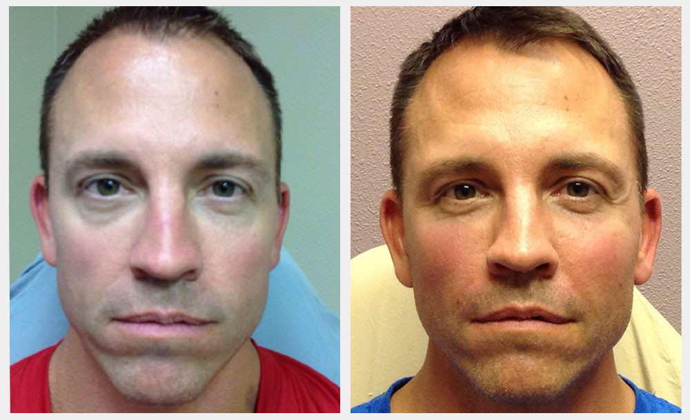 Before and After Bellafill Under Eyes and Cheeks - Dr. COte