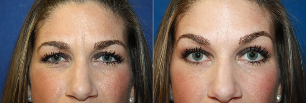 Botox before and after to lift brows
