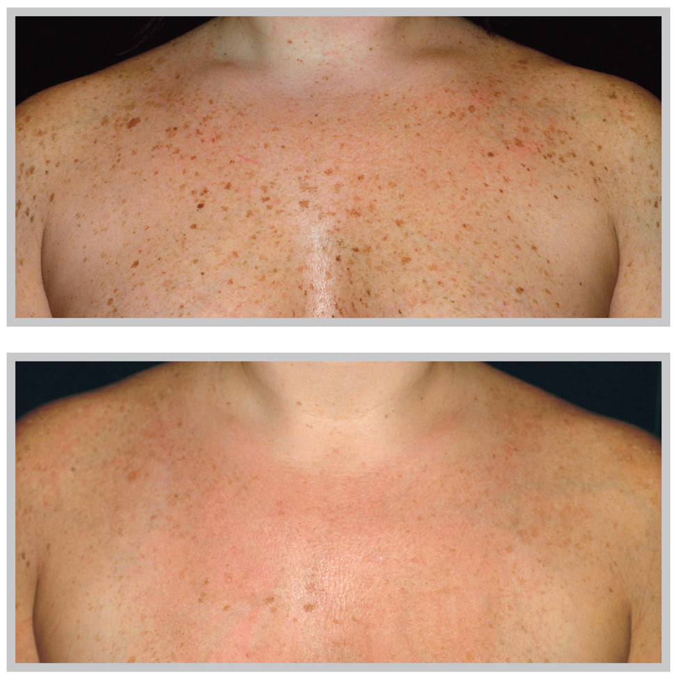 Image Before and After Photorejuvenation Treatment