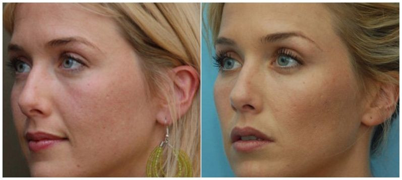Before and After Cheek lift with FIllers