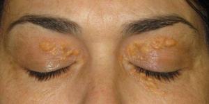Image of cholesterol deposits around eyes