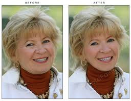 Photo retouch before and after