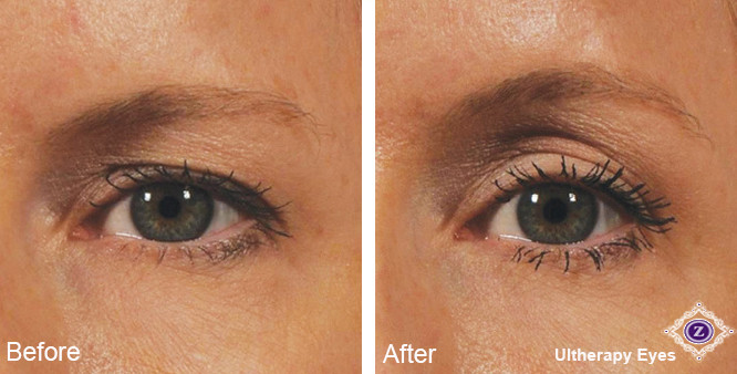 Ultherapy eyelid treatment before and after
