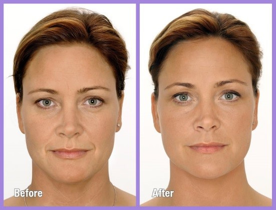 Before and After Bellafill - Nasal Labial Folds