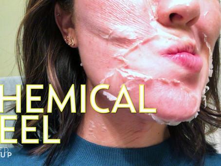 Perfect Chemical Peel