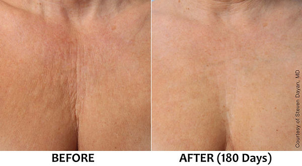 Ultherapy-decolletage-wrinkles-lines-che