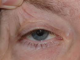 Thinning and loss of elasticity of eyelid skin