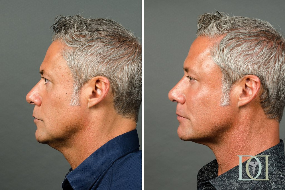 Kybella before and after man, Dr. Peter Damico