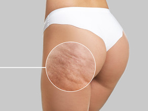 A Solution for Cellulite is Here!