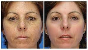 Image Before and after Photorejuvenation