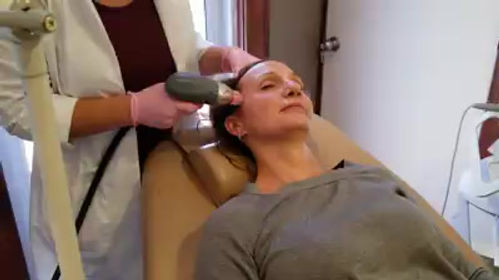 Why SkinPen Microneedling is one of the best acne scar treatments for results – David