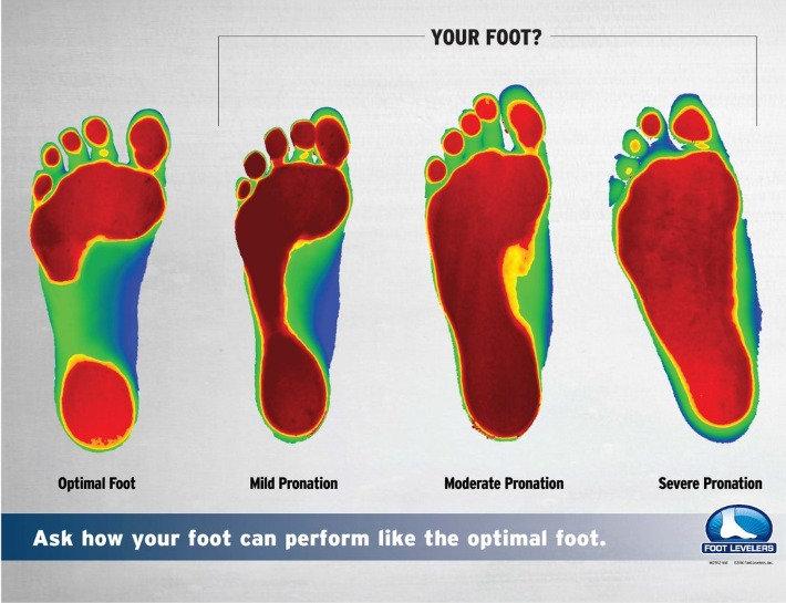 Foot Levelers - Orthotics Scan