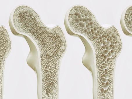 Na terceira idade, a maioria das fraturas ósseas está relacionada à osteoporose