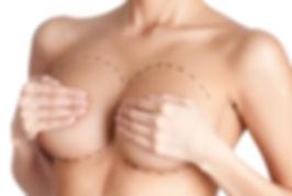 Protese de mama (5).jpg