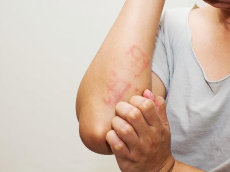 Como viver melhor com artrite psoriática?