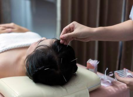 Existe remédio nas agulhas? Como age a acupuntura?