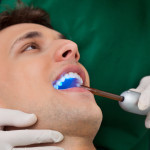 Fun Facts About Fillings