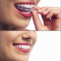 Better than braces: Check out Invisalign