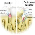 What is gum disease?