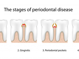 The link between gum disease and heart health