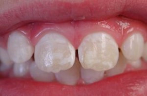 White Spots on Your Teeth: What are they?