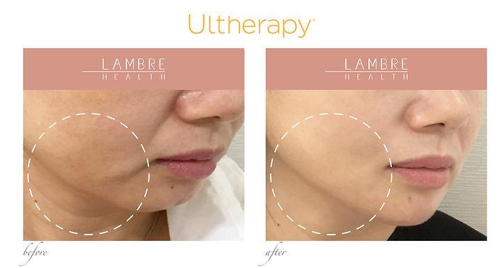 Ultherapy3.jpg