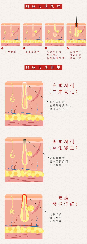治療暗瘡の最website_2.jpg