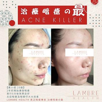 【ACNE KILLER 嚴重暗瘡療程】1.jpg