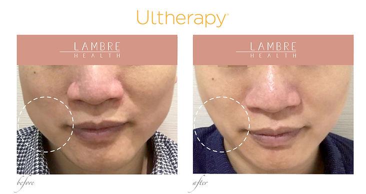 Ultherapy2.jpg